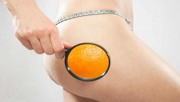 5 Alimentos que ayudan a eliminar la celulitis ¡Combátela ya!