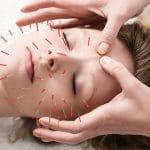 para qué sirve la acupuntura
