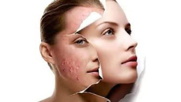 10 Consejos de cómo acabar con el acné y ¡Lucir un rostro radiante!